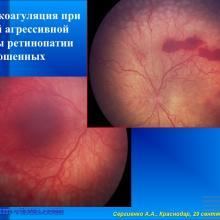 Сергиенко А.А. Лечение ретинопатии недоношенных детей (ROP) в Краснодарском крае. Портал Орган зрения organum-visus.ru