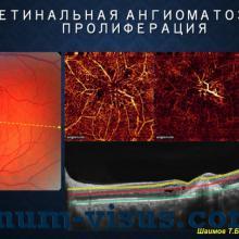 Шаимов Т.Б. Диагностика возрастной макулярной дегенерации с помощью ОКТ-ангиографии. Доклад на конференции Южно-Уральская офтальмологическая панорама-2015. Информационный партнер www.organum-visus.com (ВМД, AMD)